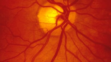 Tecnologia para superar anormalidades no sistema circulatório